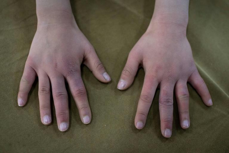 Young gymnast Du Xiyun shows her hands after a day of training at the Li Xiaoshuang Gymnastics School