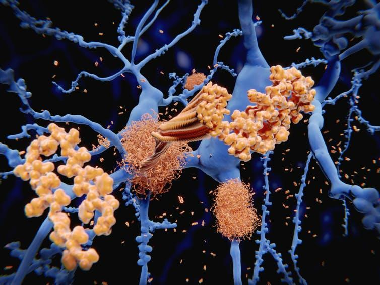 Beta-amyloid proteins forming clumps in the brain.