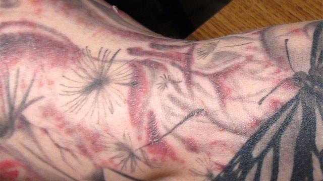A Trail of Ink: Tracking a Rare Tattoo-Related Infection