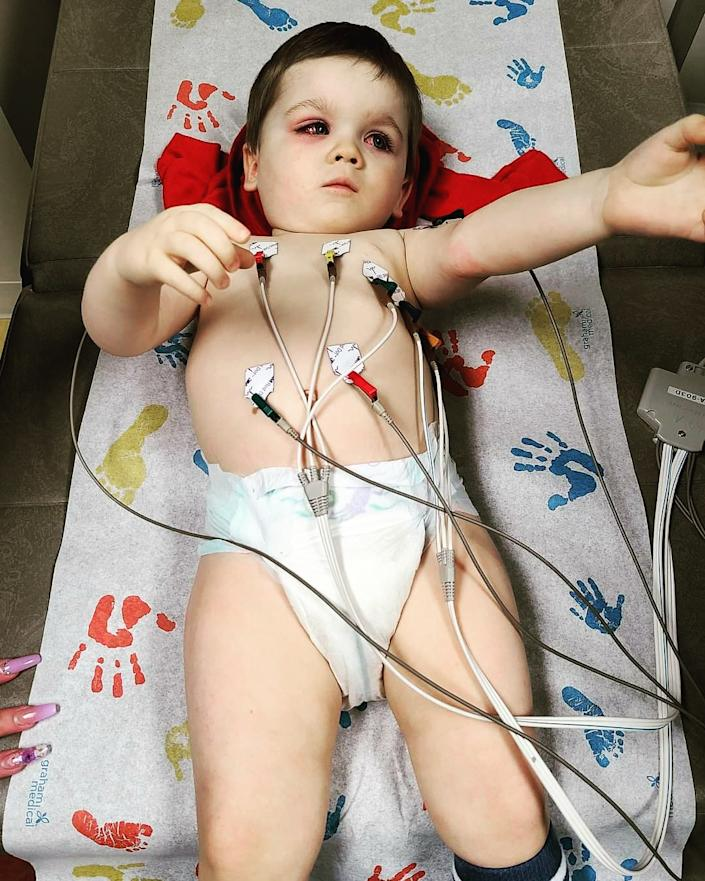 The writer's son receiving an EKG during a hospital visit for his severe eye infection. (Photo courtesy Eden Strong)