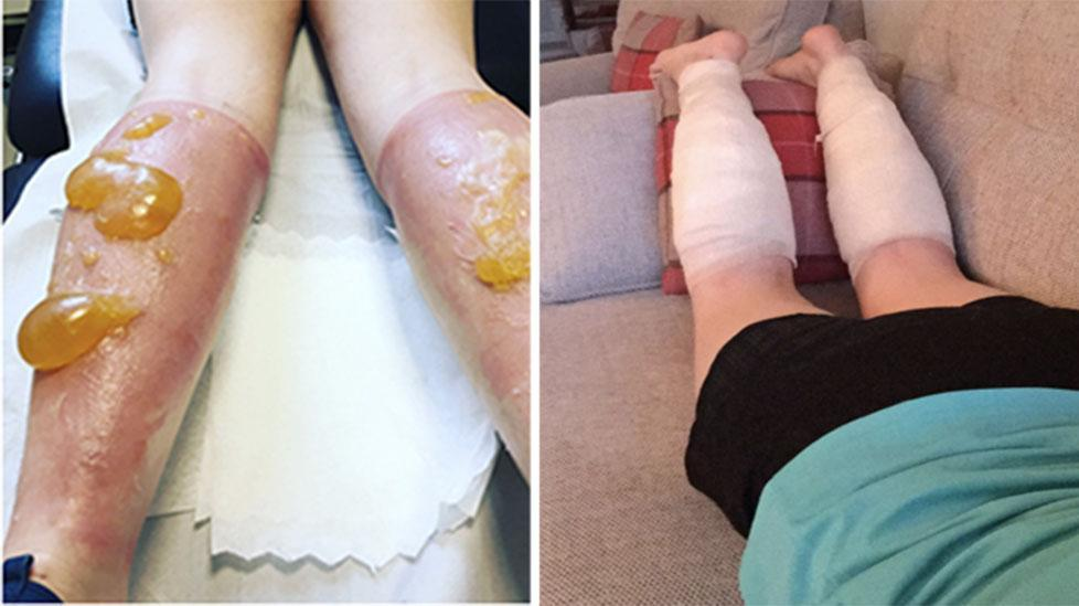 Julie Nisbet was left with massive pus-filled boils on her legs after suffering from severe sunburn during a grueling 111km ultra-marathon. Pictures: Supplied