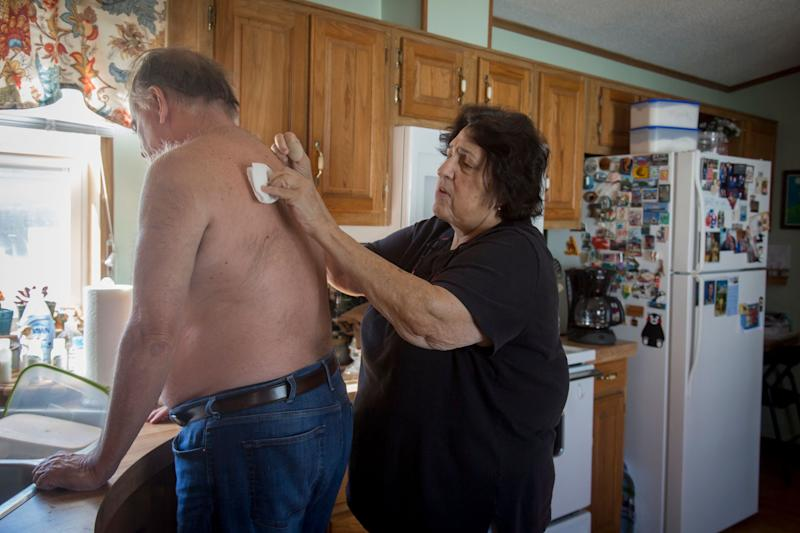 Anne Scherer cares for Alan at their home in West Des Moines, Iowa.