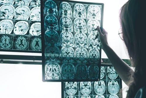 """<span class=""""caption"""">More research is needed to prove the drug slows cognitive decline.</span> <span class=""""attribution""""><a class=""""link rapid-noclick-resp"""" href=""""https://www.shutterstock.com/image-photo/alzheimers-disease-on-mri-677117191"""" rel=""""nofollow noopener"""" target=""""_blank"""" data-ylk=""""slk:Atthapon Raksthaput/ Shutterstock"""">Atthapon Raksthaput/ Shutterstock</a></span>"""