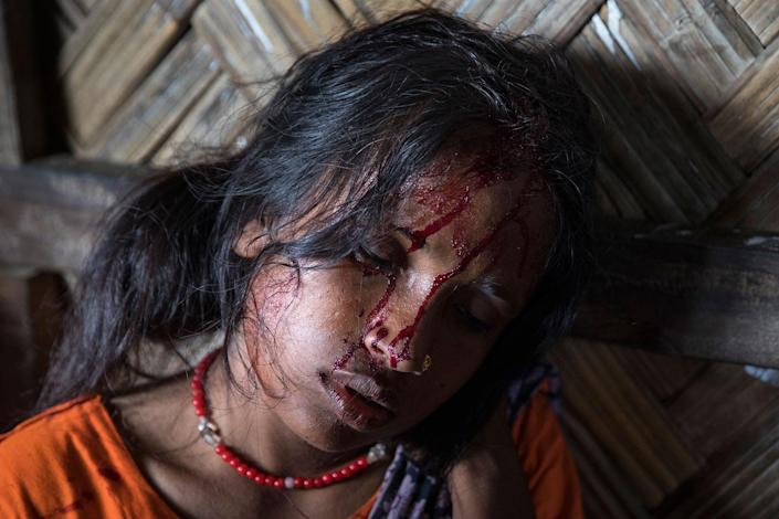 <p>Aneta Begum, 25, waits for treatment for a head injury in the emergency unit at the 'Doctors Without Borders' Kutupalong clinic on October 4, 2017 in Cox's Bazar, Bangladesh. (Photograph by Paula Bronstein/Getty Images) </p>