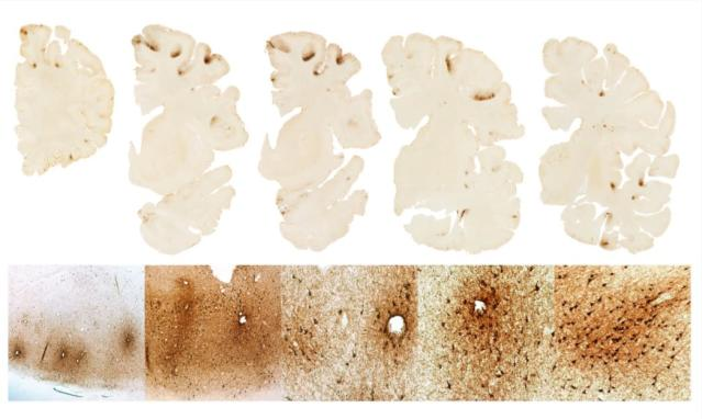 Boston University unveiled a detailed look at the dissected brain of ex-New England Patriot Aaron Hernandez. The researchers say there are heavy deposits of tau protein in Hernandez's frontal lobe (top row), a sign of CTE. The bottom row shows a detailed look at the tau deposits in nerve cells around small blood vessels. (Photos by Boston University)