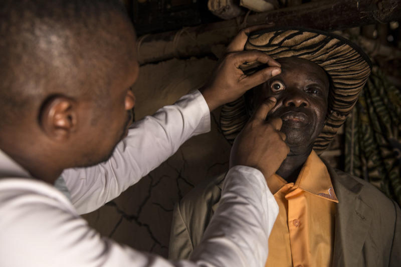 A doctor examines Baudoin for co-infections that could make it risky for him to take a drug used to fight elephantiasis. (Neil Brandvold/DNDi)