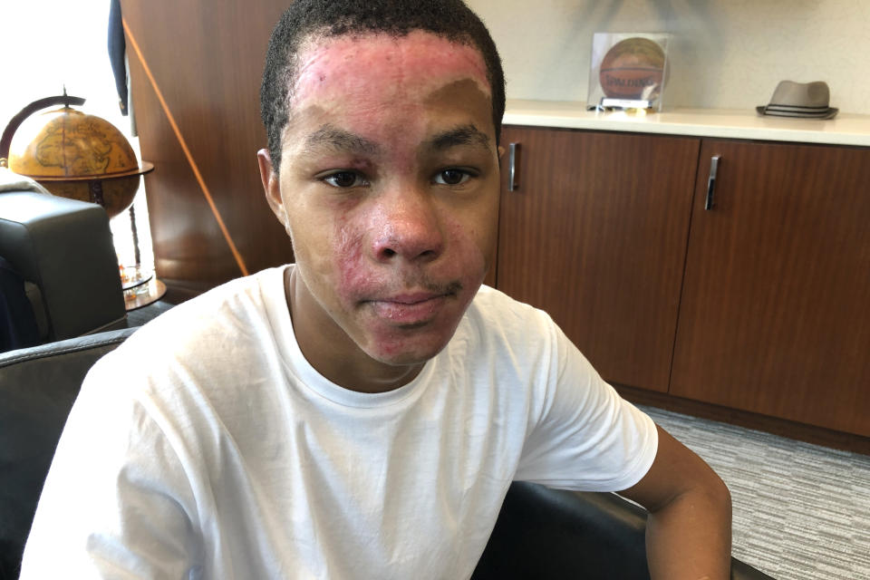 In this Sept. 12, 2019 photo, Malachi McFadden, 16, who suffered serious burns during a chemistry class demonstration on Aug. 6, poses for a photo at his lawyer's office, in Atlanta. Lawyers for McFadden, a student who was burned during a chemistry class demonstration have released a report, Wednesday, Nov. 6, 2019, saying his teacher violated school district standards. (AP Photo/Kate Brumback)