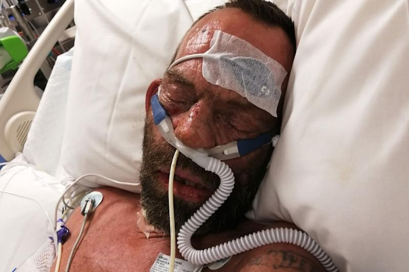 Roy Escott is seen lying in a hospital bed with a tube in his nose.