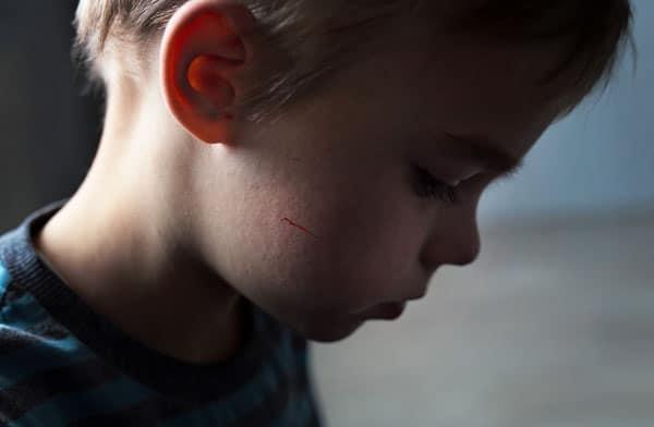 The Pandemic Is Causing An Increase In Child Abuse: boy with cut on his cheek
