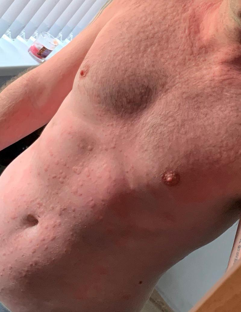 Urticaria on a patient's torso. (Photo: Covid Symptom Study)