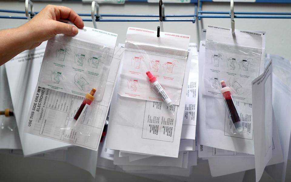 A new company is hoping to use period blood for good [Photo: Lynne Cameron/PA Wire]