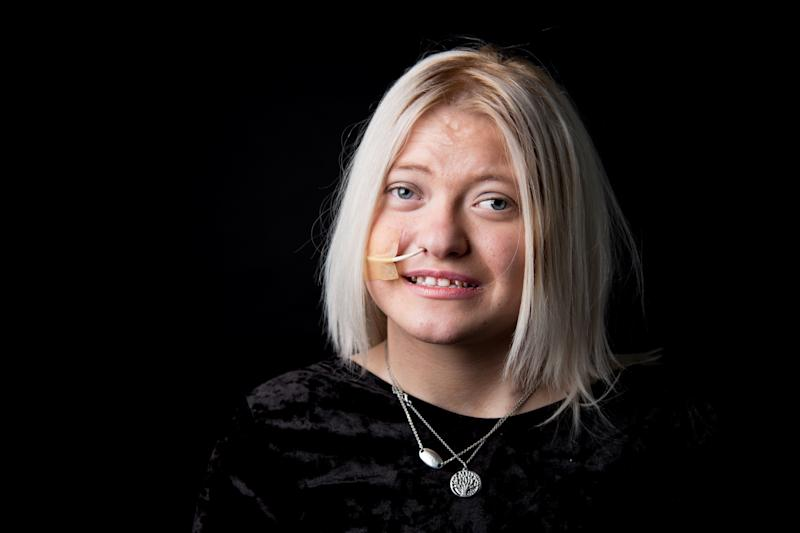 """Olivia is 17 and does not have a diagnosis."" (Ceridwen Hughes)"