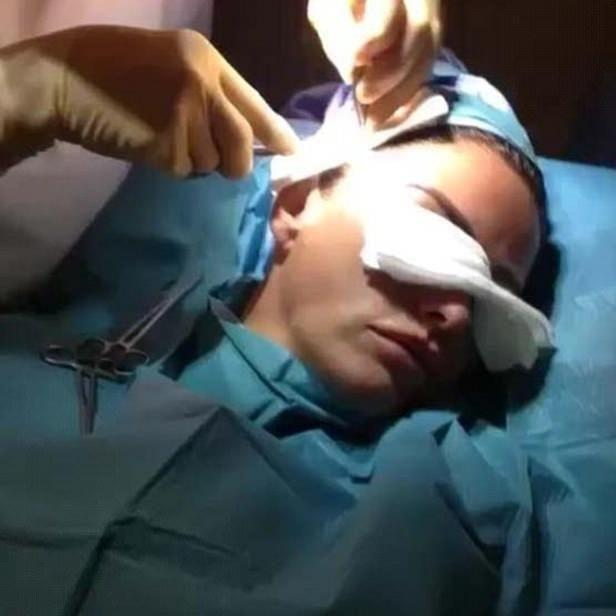 Katie shared a gruesome video of the facelift on her Instagram page back in July. Photo: Instagram/Katie Price