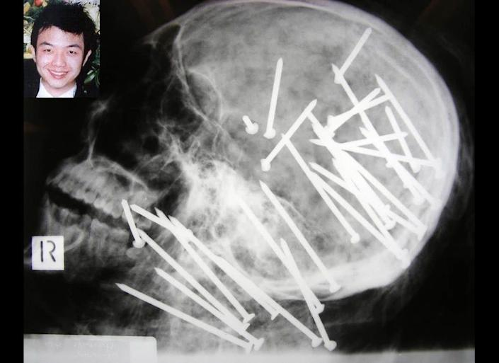 Police in Sydney, Australia, released this X-ray of the skull of Chen Liu, 27, who died after being shot in the head with a nail gun 34 times. Liu's bound body was found in a river in November. The photo was released as part of a public plea for more information in the case. Liu is shown on the upper left in an undated photo.