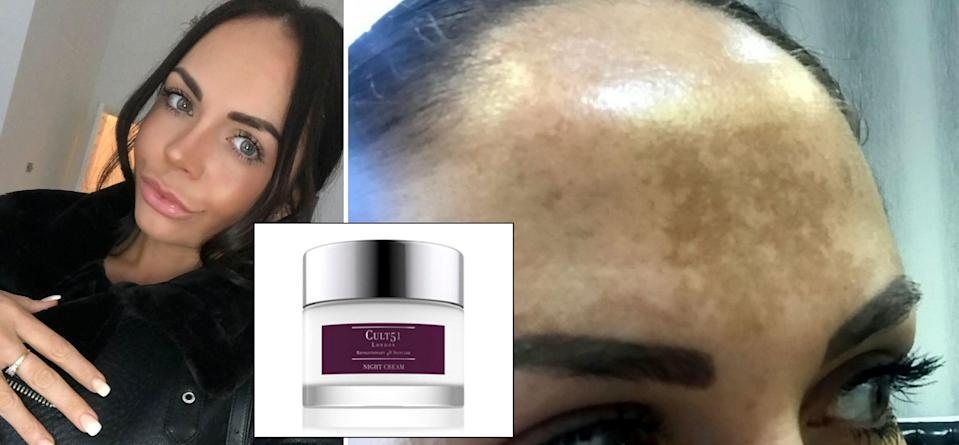 A woman who spent £4000 on treatments for sun damage has found a miracle cure via an over-the-counter cream [Photo: SWNS]