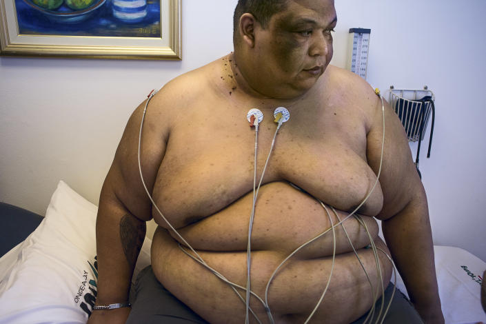 <p>Ricardo Landi, now 37, during a preoperative medical examination in the Chrysalis Clinic for the treatment of obesity, in the Life Kinksbury Hospital in 2015. Because of his weight problem, Landi suffers from knee problems that prevent him from walking for extended periods. (Photograph by Silvia Landi) </p>