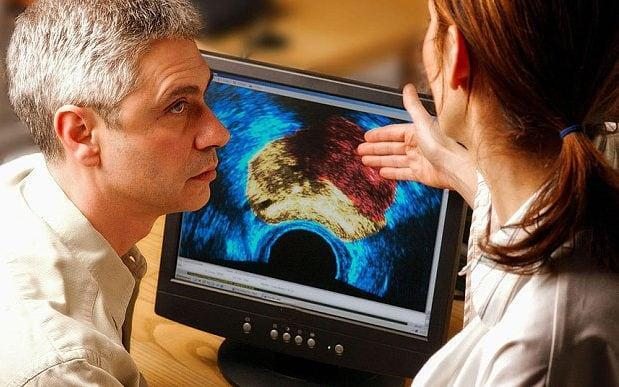 Prostate cancer is one of the most common forms of cancer - © Phanie / Alamy