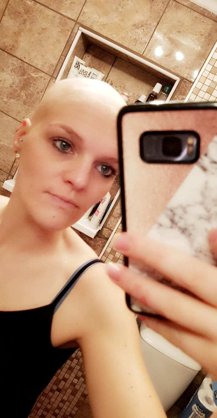 ***EMBARGOED 2PM BST / 10AM EST OCTOBER 29 2019***    Claire Curtis after losing her hair. Claire Curtis, 30, who believed her headaches and general lethargy were down to 'baby brain' was shocked to discover she actually had an incurable brain tumour. See SWNS story SWOCbabybrain. A new mum who put her headaches and tiredness down to 'baby brain' was devastated to discover she actually had an incurable brain tumour. Claire Curtis, 30, had been experiencing headaches and feeling tired for a months before her diagnosis but just put it down to the stress of being a new mum. Doctors prescribed her medication for migraines, but when Claire started vomiting in the early hours of the morning, she knew it was something more sinister. An MRI scan revealed that Claire had an incurable brain tumour the size of an orange, and she is now battling the cancer to get more time with her family.