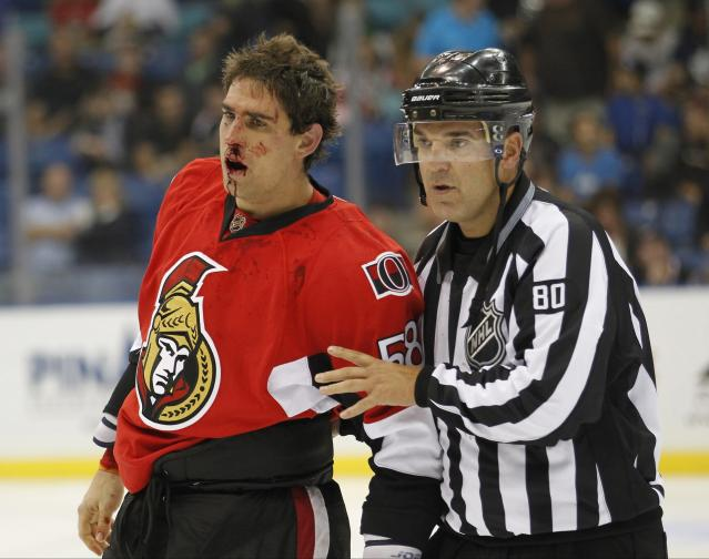 A bloodied Ottawa Senators Michael Sdao leaves the ice after a fight while playing against the Calgary Flames during the second period of their NHL hockey game in Saskatoon, Saskatchewan September 16, 2013. REUTERS/David Stobbe (CANADA - Tags: SPORT HOCKEY)