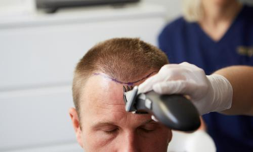 The hair wellness industry: 'Men said they would rather have a small penis than go bald'