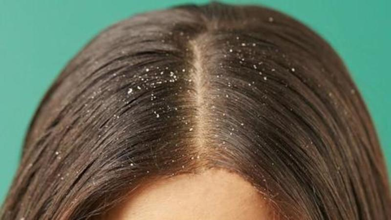 #HealthBytes: Five home remedies to get rid of dandruff naturally
