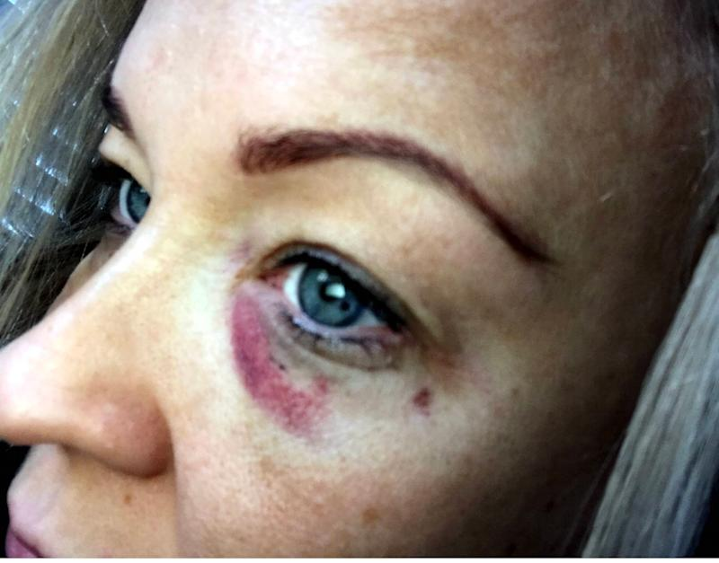 Amy Tombs, 36, who was glassed in the face while on a night out at exclusive nightclub the Lotus Lounge in the up-market North Yorkshire town of Yarm earlier this year, has branded restorative justice a joke - Credit: North News / NNP