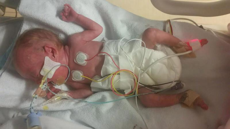 Miracle Baby Born One Week Before Abortion Limit Thrives