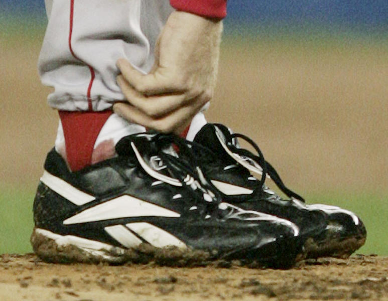FILE - In this Oct. 19, 2004 file photo, Boston Red Sox pitcher Curt Schilling tends to his right ankle during the third inning of game 6 of the ALCS against the New York Yankees in New York. Schilling has dabbled in politics, World War II history and raised millions for Lou Gehrig's disease, but it's a gamble on his video game company 38 studios that is in danger of failing and possibly leaving Rhode Island taxpayers with the tab on a $75 million loan guarantee that lured the firm from Massachusetts in 2010. (AP Photo/Charles Krupa, File)