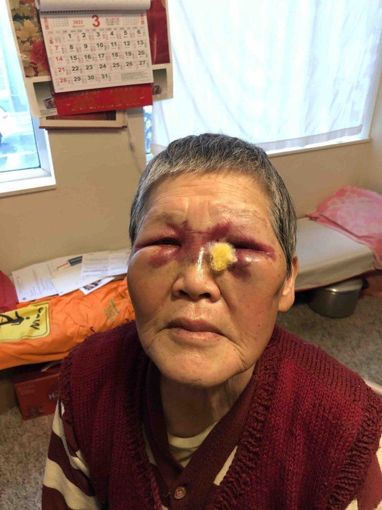 Xie's family said she was emotional and cried often after the incident, but is slowly recovering from her injuries. Photo: GoFundMe