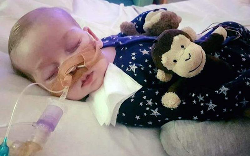 Charlie Gard being treated in Great Ormond Street hospital - Family handout