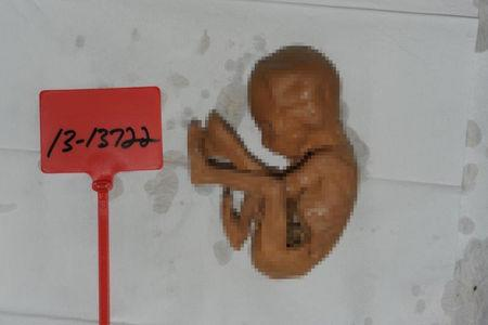 EDITOR'S NOTE: Reuters has pixelated this image; editors judged the original image to be disturbingly graphic.   In a photograph obtained by Reuters, a fetus lies alongside a government evidence marker. The fetus and three others were found during a 2013 search of a Detroit warehouse operated by Arthur Rathburn, a businessman who sold human body parts for medical research and education. Rathburn has pleaded not guilty to selling infected body parts of adults.  Government photo via REUTERS