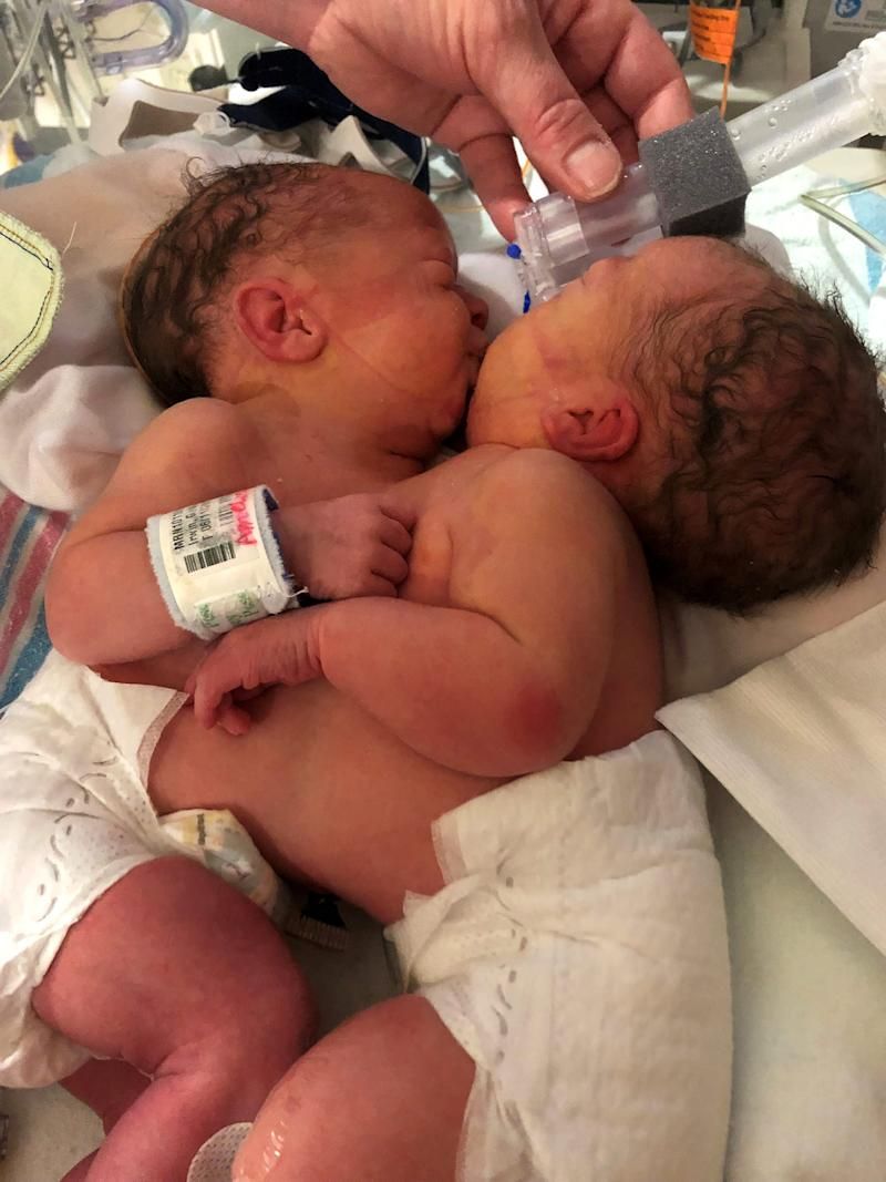 Amelia and Sarabeth Irwin, conjoined twins, at C.S. Mott Children's Hospital in Ann Arbor just three days after they were born on June 11, 2019. The twins underwent successful separation surgery, believed to be the first of its kind in the state, on Aug. 5.