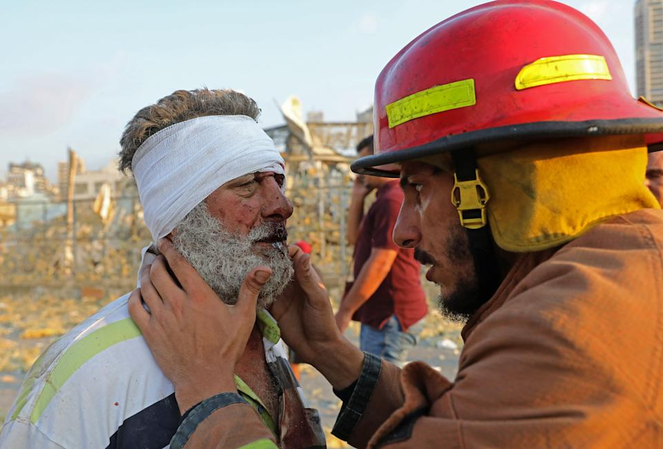 A wounded man is checked by a fireman near the scene of an explosion in Beirut on August 4, 2020. - A large explosion rocked the Lebanese capital Beirut on August 4, an AFP correspondent said. The blast, which rattled entire buildings and broke glass, was felt in several parts of the city. (Photo by Anwar AMRO / AFP) (Photo by ANWAR AMRO/AFP via Getty Images)