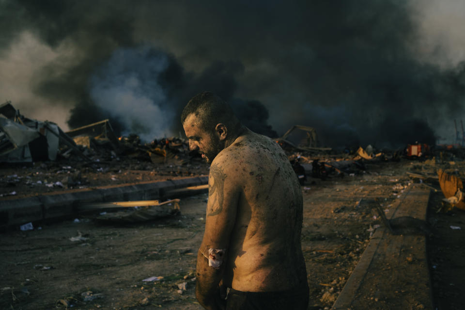 In this image released by World Press Photo, Thursday April 15, 2021, by Lorenzo Tugnoli, Contrasto, for The Washington Post, part of a series titled Port Explosion in Beirut, which won first prize in the Spot News Stories category, shows An injured man stands near the site of a massive explosion in the port of Beirut, Lebanon, while firefighters work to put out the fires that engulfed the warehouses after the explosion, on August 4, 2020. (Lorenzo Tugnoli, Contrasto, for The Washington Post, World Press Photo via AP)