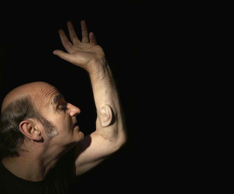 Australian artist and academic Stelarc plans to connect an implanted ear -- he has been growing on his arm for years -- to the Internet