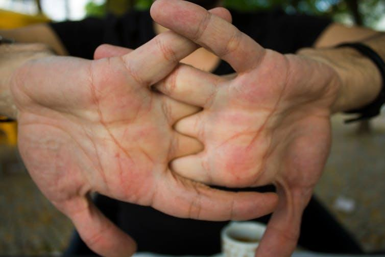 does cracking your knuckles cause arthritis yahoo