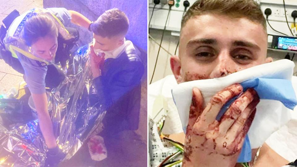 This picture shows Jack Woolley after the horrific attack in Dublin.