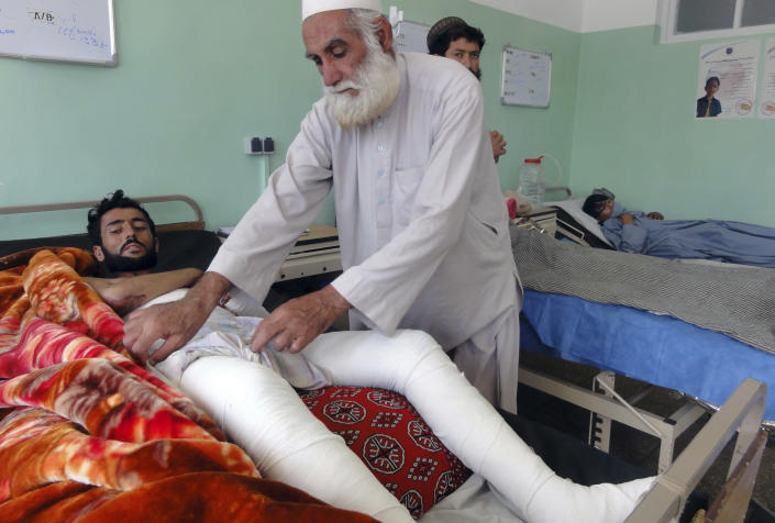 Wounded Afghans lie on a bed at a hospital after fighting between Taliban and Afghan security forces in Kandahar province south of Kabul, Afghanistan, Thursday, Aug. 5, 2021. (AP Photo/Sidiqullah Khan)