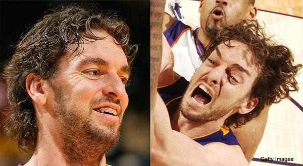 Nba Players With Braces