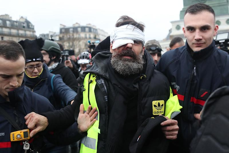 """Jerome Rodrigues, who has become a well-known figure in the """"yellow vest"""" movement with 50,000 followers on Facebook, was live-streaming the protest on the website when he was hit (AFP Photo/Zakaria ABDELKAFI)"""