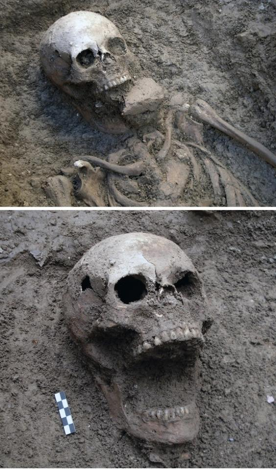"A skeleton buried in the cemetery of Vecchiano in Pisa showing a similar condition to the purported ""Venetian vampire."""