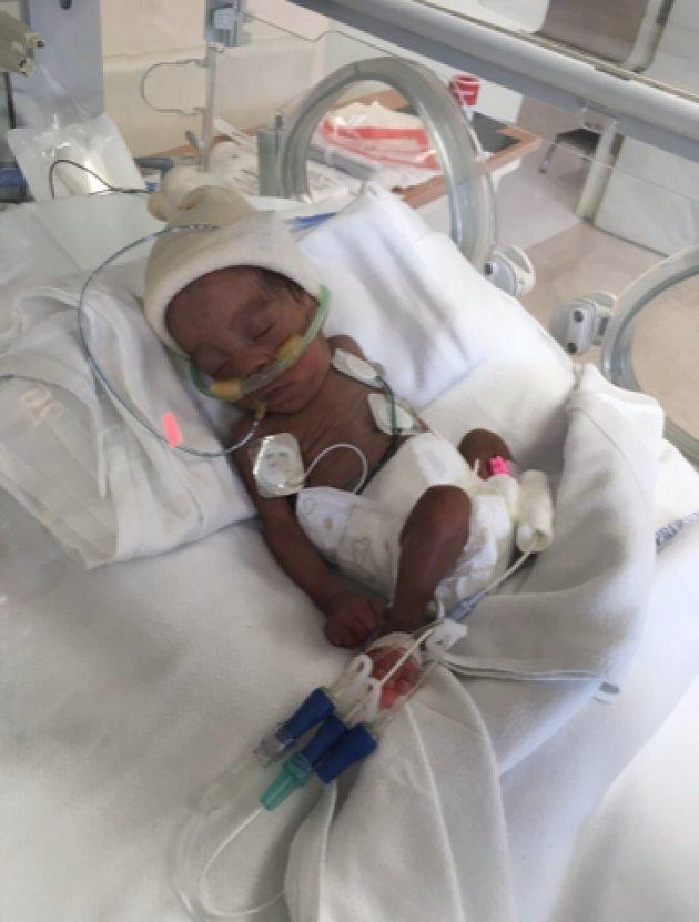 Today, Madison weighs two pounds. If all goes well, she'll be ready to leave the hospital by May.