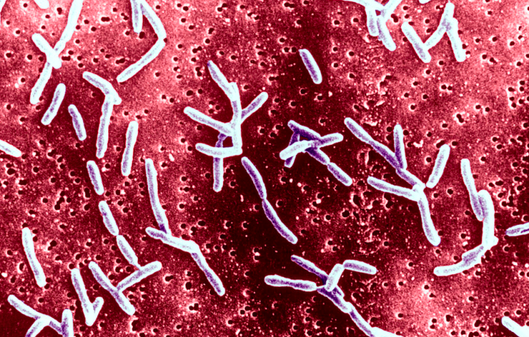 Campylobacter is the leading cause of food poisoning (Getty)