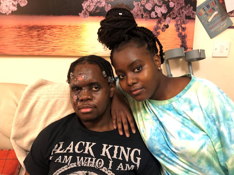 K and his sister after the attack (Claire Hayhurst/PA) (PA Archive)