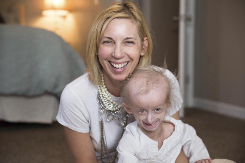Kids with rare rapid-aging disease get hope from study drug