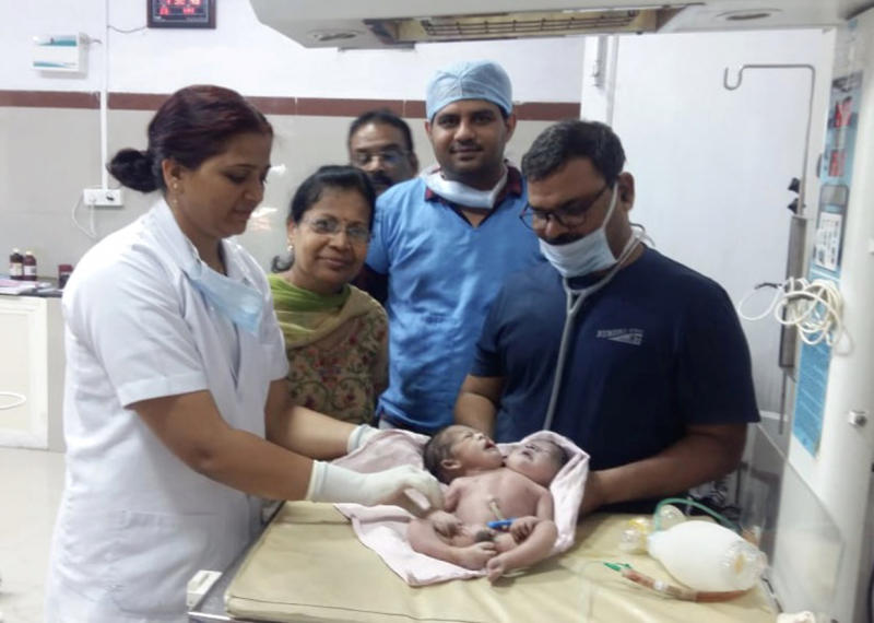 Doctors with the conjoined twins after they were born in India on Saturday (Picture: Caters)