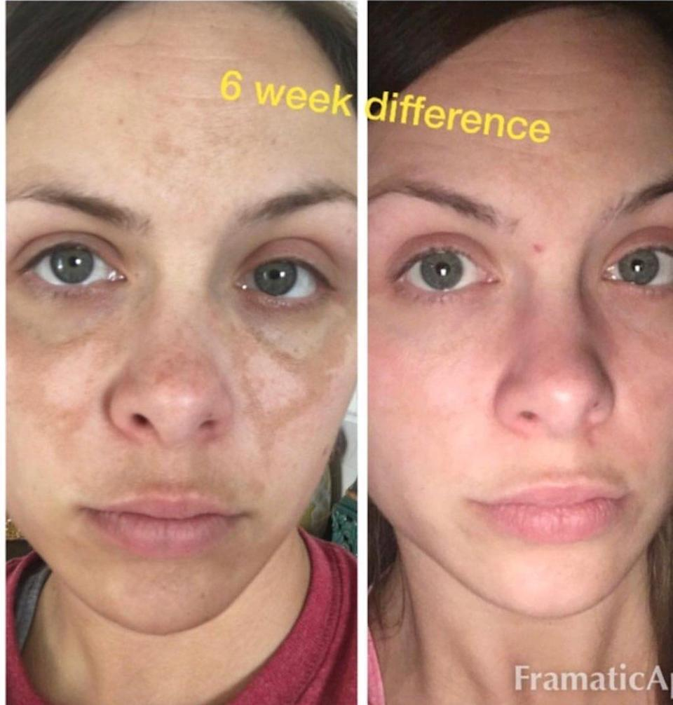 """Thisearns lots of credit in the Amazon reviews from people with hyperpigmentation and melasma. But folks with rosacea will also find it incredibly useful in their skin care routine. Note: As with a lot of skin care products, this stuff makes issues like dark spots a little worse before they get better.<br /><br /><strong>Promising review:</strong>""""I bought this for a few age spots that had become noticeable after a few too many hours in the sun this summer. One of the age spots was very dark and prominently located directly under my left eye. I bought this in a desperate attempt to diminish the age spot, at the very least. I am amazed at the results. The solution completely removed all of my age spots.<br /><br />FAIR WARNING: Many others have posted this, but it is worth repeating. This solution turns the spots much darker and even creates a sort of scab before flaking and peeling off to reveal healthy skin underneath. I used the solution at morning and at night, only on the dark spots, and looked like I'd been attacked by a clawed cat for about two weeks. Then the spots finally flaked and peeled off. Would I do it again? Definitely. But do note that it gets worse before it gets better."""" —<a href=""""https://www.amazon.com/dp/B01MXLF8TY?tag=huffpost-bfsyndication-20&ascsubtag=5876069%2C2%2C48%2Cd%2C0%2C0%2C0%2C962%3A1%3B901%3A2%3B900%3A2%3B974%3A3%3B975%3A2%3B982%3A2%2C16398644%2C0"""" target=""""_blank"""" rel=""""noopener noreferrer"""">Todd W Fletcher</a><br /><br /><strong>Get it from Amazon for <a href=""""https://www.amazon.com/dp/B01MXLF8TY?tag=huffpost-bfsyndication-20&ascsubtag=5876069%2C2%2C48%2Cd%2C0%2C0%2C0%2C962%3A1%3B901%3A2%3B900%3A2%3B974%3A3%3B975%3A2%3B982%3A2%2C16398644%2C0"""" target=""""_blank"""" rel=""""noopener noreferrer"""">$20.40</a>.</strong>"""