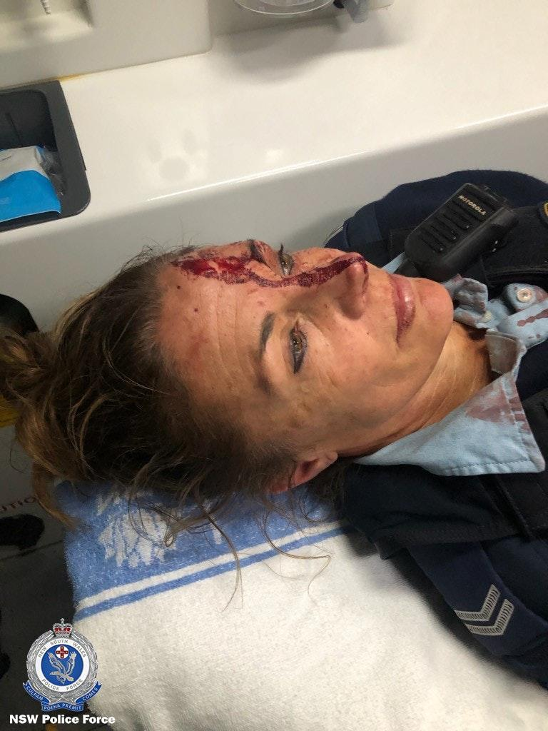 The senior constable was taken to Wyong Hospital after she was treated for her injuries at the scene. Source: NSW Police