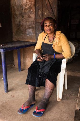 Ndidi Ekeanyawu's swollen legs are covered in cuts from the traditional healer. (The Carter Center / R McDowell)