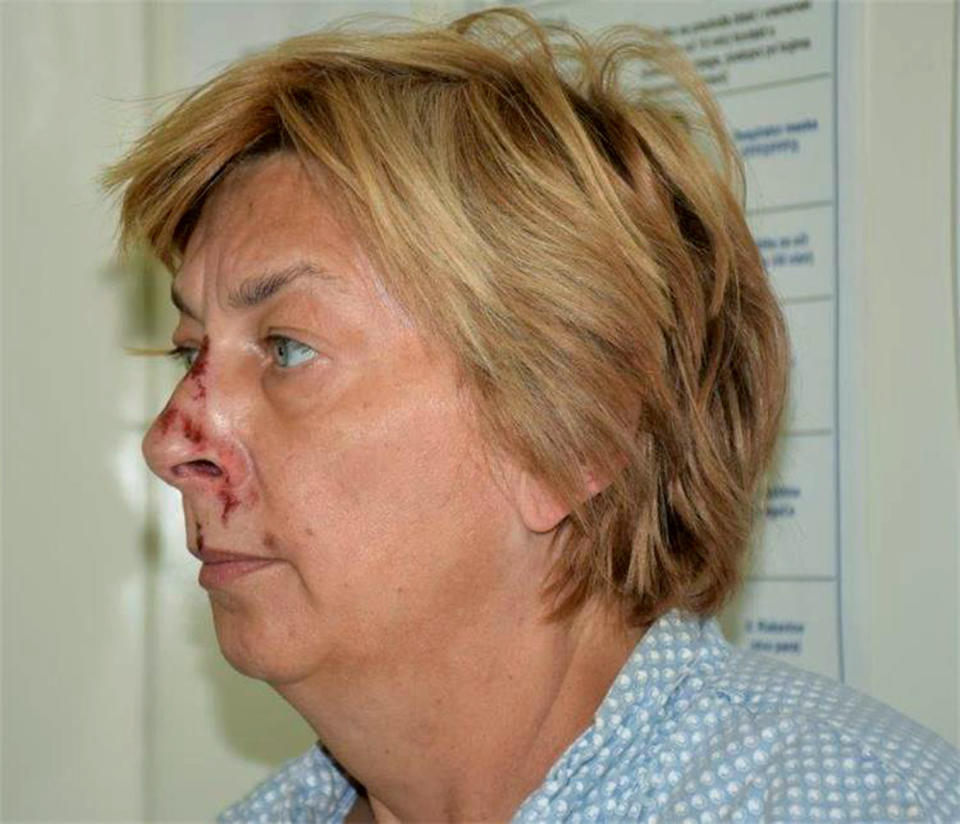 This undated photo provided by the Croatian Police shows an unidentified woman who was found on the Adriatic island of Krk on Sept. 12, 2021. Croatian police said Tuesday, Sept. 21, 2021 they are still working to establish the identity of a woman found over a week ago at a northern Adriatic Sea island with no recollection of who she is or where she came from. Police told the Associated Press they are searching the terrain and conducting numerous interviews with residents and tourists or anyone who has information about the woman discovered on the island of Krk on Sept. 12. (Croatian Police via AP)